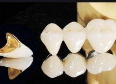 镶牙的材料是什么价格是多少呢