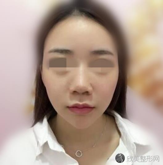 武汉达拉斯整形美容医院刘医生隆鼻之前