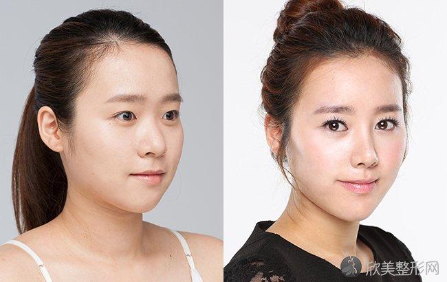 中国最好的隆鼻鼻修复专家:成铤(案例预约效果价格)在哪个医院坐诊?