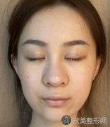 成都二医院整形科隆鼻技术怎么样?内附术前术后真人案例分享,一起来看看吧