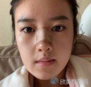 北京新星靓宫风勇做鼻修复怎么样?附案例分享+价格表一览