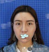 北京沃尔冯雁平鼻综合做得怎么样?内附术前术后效果图分享