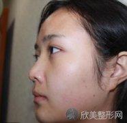 北京东方和谐整形医院怎么样?面部吸脂效果理想,一起来见证蜕变!