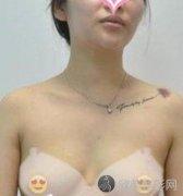 上海伊莱美孙美庆隆胸怎么样?附隆胸案例+全新价格表