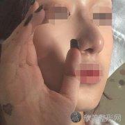 沈阳杏林朱石江隆鼻怎么样?手术3个月恢复效果+价格表