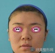 江苏省中医院整形外科隆鼻怎么样?附术后恢复效果图+全新价格表