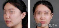 隆鼻效果怎么样?一起看看真实的隆鼻案例分享吧