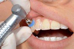 做了种植牙这些护理保养指南很有用!请收藏