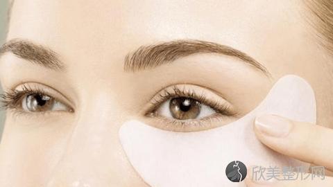 成都华颜做双眼皮技术怎么样?成都华颜做双眼皮真实案例,术后恢复非常好!