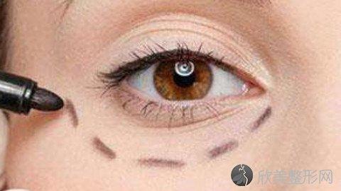 开封华亿医院医生详细介绍?哪个医生比较好?2021最新双眼皮整形价格表发布!