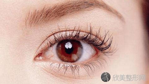 成都恩喜做双眼皮技术怎么样?成都恩喜做双眼皮真实案例分享,眼睛变大一圈了