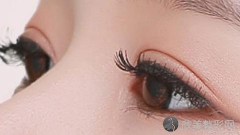 海口瑞韩医院医生详细介绍?医生排行榜推荐?2021最新双眼皮修复案例公布!