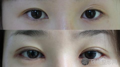 八大处石蕾做双眼皮技术怎么样?八大处石蕾做双眼皮真实案例,医生非常专业