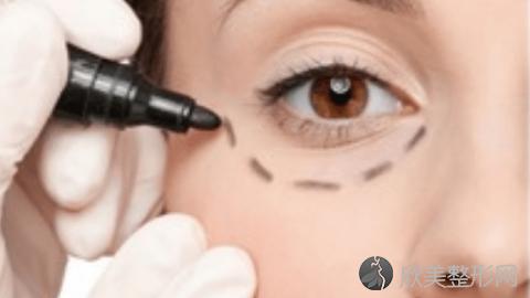 成都华西的做双眼皮的技术怎么样?成都华西双眼皮真实案例分享,术后很惊艳