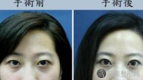 八大处赵延勇做双眼皮技术怎么样?八大处赵延勇做双眼皮案例分享,术后完美比