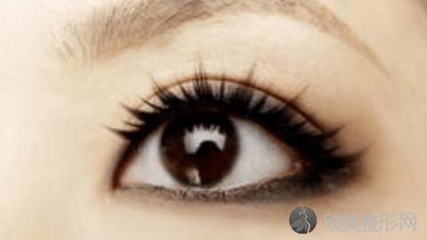 成都米兰做的双眼皮技术怎么样?成都米兰双眼皮真实案例,双眼皮术后超自然