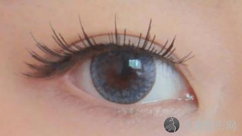 赣州华美做双眼皮好不好?内附双眼皮术案例分享及最新整形优惠价格表