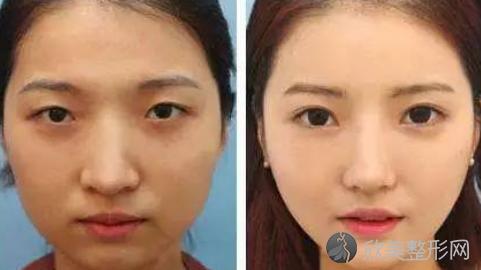 协和医院刘小伟做双眼皮好不好?双眼皮手术案例恢复过程跟踪