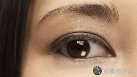 协和医院赵茹做双眼皮好不好?整形双眼皮案例分享,最新优惠价格表分享