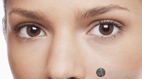 潍坊华美做双眼皮好不好?内附双眼皮整形案例分享