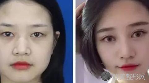 华美杨丽萍做双眼皮修复好不好?内附双眼皮整形价格表
