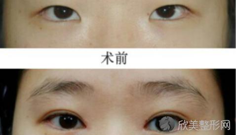 华美黄江泊做双眼皮好不好?内附双眼皮整形案例及最新整形价格表