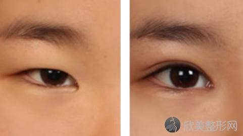 华美李超做双眼皮好不好?双眼皮案例分享,最新整形价格表曝光