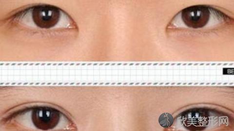 重庆华美陈凯做双眼皮好不好?双眼皮整形案例分享,最新整形优惠价格表曝光