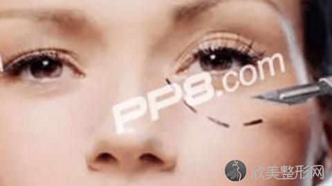 重庆华美杨丽萍做双眼皮修复好不好?内附医生案例分享及最新价格表