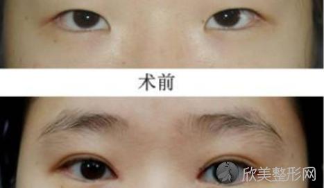 长沙瑞澜郭林林做双眼皮好不好?内附双眼皮整形案例分享