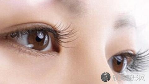 北京爱悦丽格马力做双眼皮怎样?北京爱悦丽格马力做双眼皮案例分享及最新价