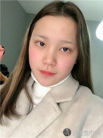 北京新面孔医疗美容诊所好不好?医院案例|项目价格表最新