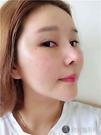 北京新面孔医疗美容诊所怎么样?附案例|全新价格表