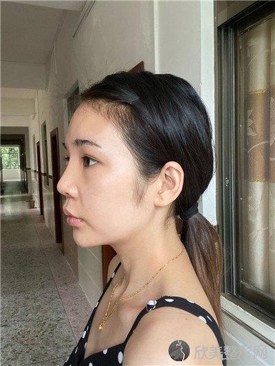 北京王瑛医疗美容诊所靠谱吗?附案例 价格表一览