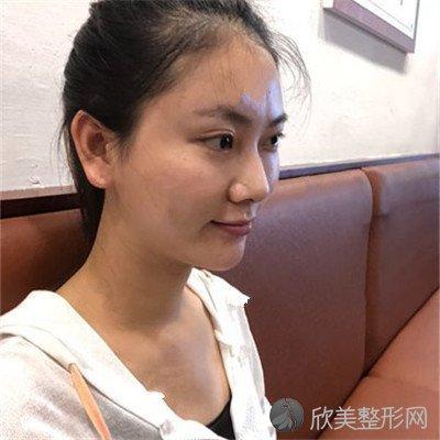 北京王瑛医疗美容诊所口碑好吗?附案例|全新价格表
