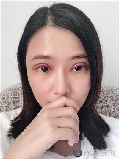 北京王瑛医疗美容诊所好不好?附案例|价格表一览
