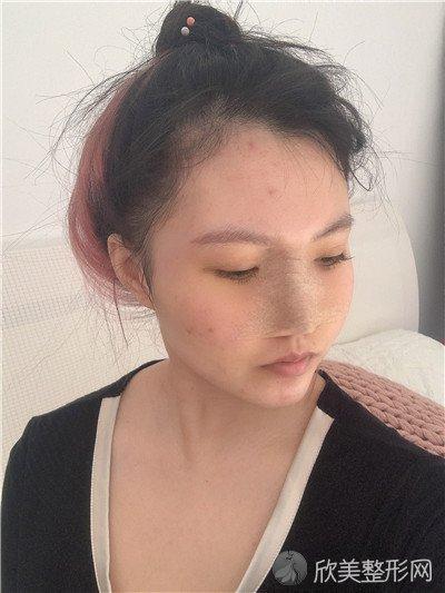 北京加减美面部提升怎样?医院案例|项目价格表最新