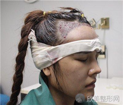 北京金燕子医疗美容诊所靠谱吗?医院案例 项目价格表最新