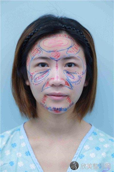 北京和谐美丽汇医疗美容诊所口碑好吗?附案例 全新价格表
