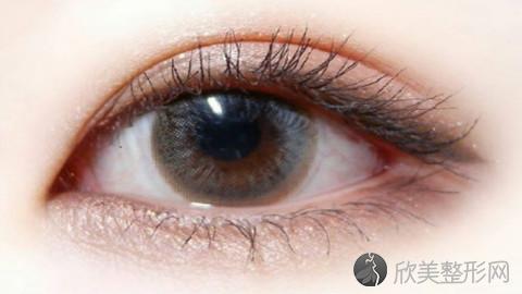 苏州吴中维多利亚做双眼皮怎么样?双眼皮手术案例及价格表