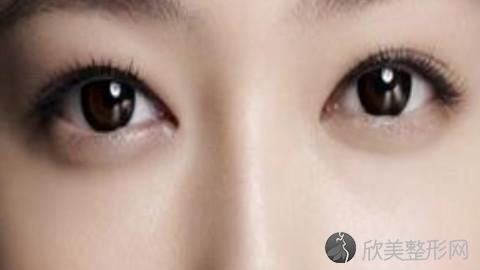 北京维密科美做双眼皮怎么样?北京维密科美做双眼皮案例,气质提高了!