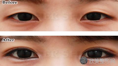 北京张海明做的双眼皮怎么样?北京张海明做的双眼皮案例,医生技术很不错!