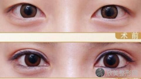 美立方熬院长做双眼皮究竟怎么样?内附2021最新整形价格表
