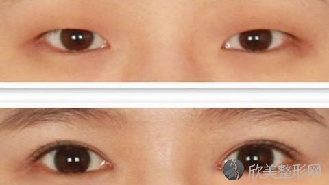 美立方樊院长做双眼皮怎么样?附双眼皮手术案例及价格表