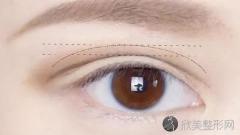 美立方胡江伟做双眼皮到底怎么样?内附双眼皮手术案例及最新整形价格表
