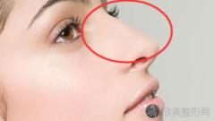 西安西京医院王璐鼻修复好不好?内附隆鼻修复整形案例分享