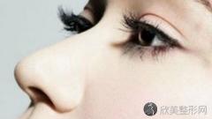 白永辉做双眼皮好不好?内附双眼皮整形案例及最新价格表分享