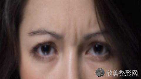 白永辉做双眼皮修复好不好?内附双眼皮整形案例分享及最新整形价格表