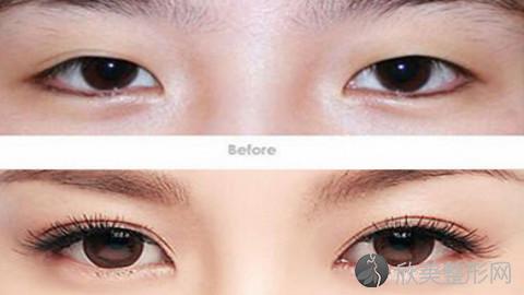 顿兆做双眼皮好不好?内附双眼皮手术案例及最新整形价格表