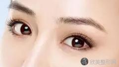 蔡茂季做双眼皮到底好不好?内附双眼皮手术案例及最新整形价